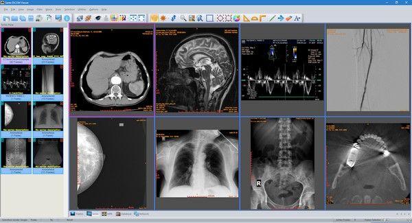Sante DICOM Viewer(医疗办公软件)下载