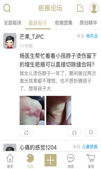 中国疤痕论坛软件截图2